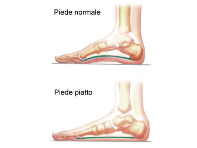 piede piatto 1