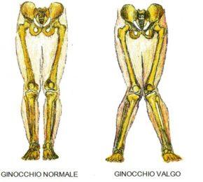 Cos'è e come curare il ginocchio valgo